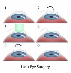 הסרת משקפיים בשיטת LASIK